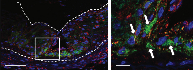 nanoparticles in heart attack-causing plaque