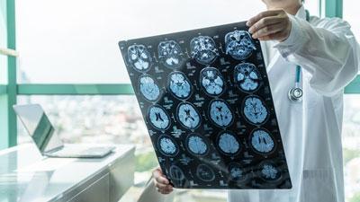 brain scans stock photo