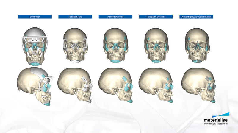 Materialise skull workflow for operation