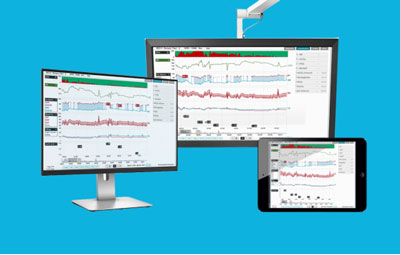 Terumo Cardiovascular Group is collaborating with Etimetry to bring advanced clinical decision support to adult cardiac surgery patients. // Courtesy of Etiometry